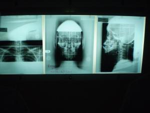 x-rays untuk NPC case jugak